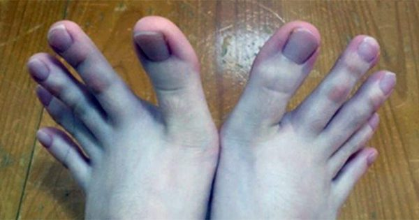 This Woman's Feet Have Officially Gone Viral, And It's Pretty Easy To Understand Why